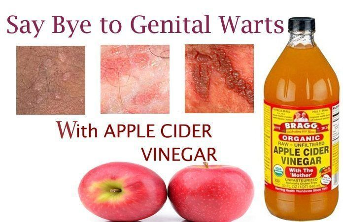 warts treatment vinegar