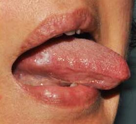 papilloma virus sul labbro