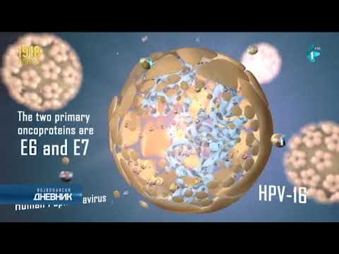 stage one hpv cervical cancer chemotherapy for hpv throat cancer