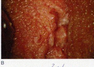 cancer col uterin operatie