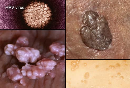hpv wart breakout hpv positive lung cancer
