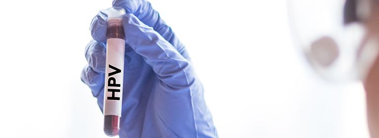 viermi paraziti trichina vaccino papilloma virus quante dosi