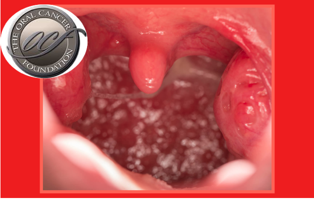cancer renal lymphoma pastillas para oxiuros