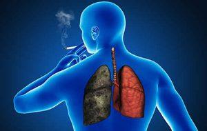 pancreatic cancer gene cancer de pancreas pronostico de vida