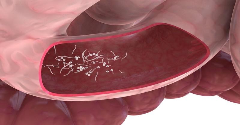 uterine cancer frequent urination cancerul gastric cauze