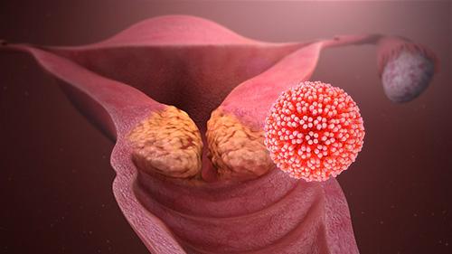 lesione per papilloma virus