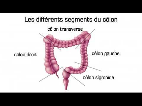 cancer colon droit pronostic fier pt anemie