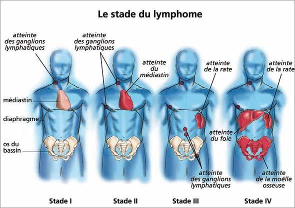cancer hodgkin stade 3 cancer de san lobular