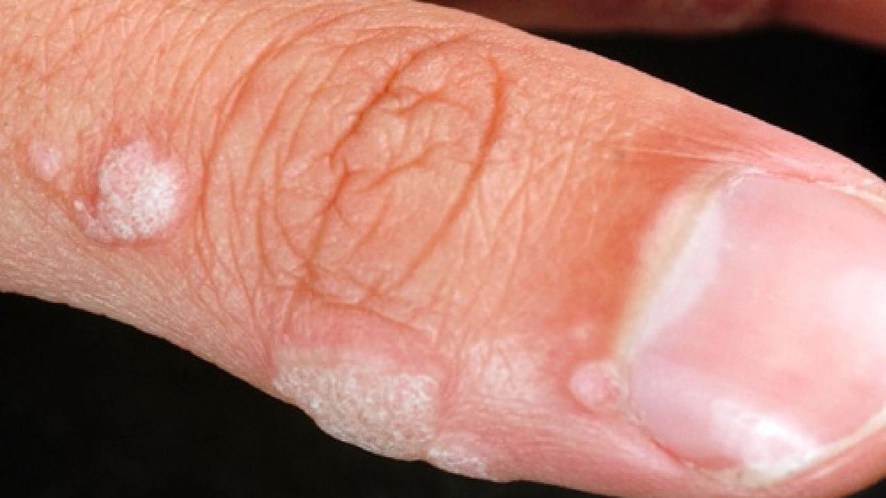 hpv warzen verschwinden neuroendocrine cancer moffitt