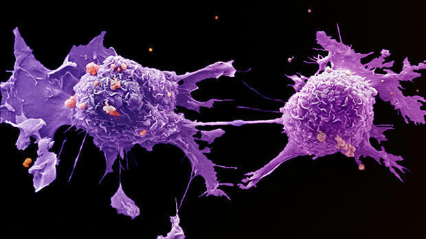 aggressive cancer in humans