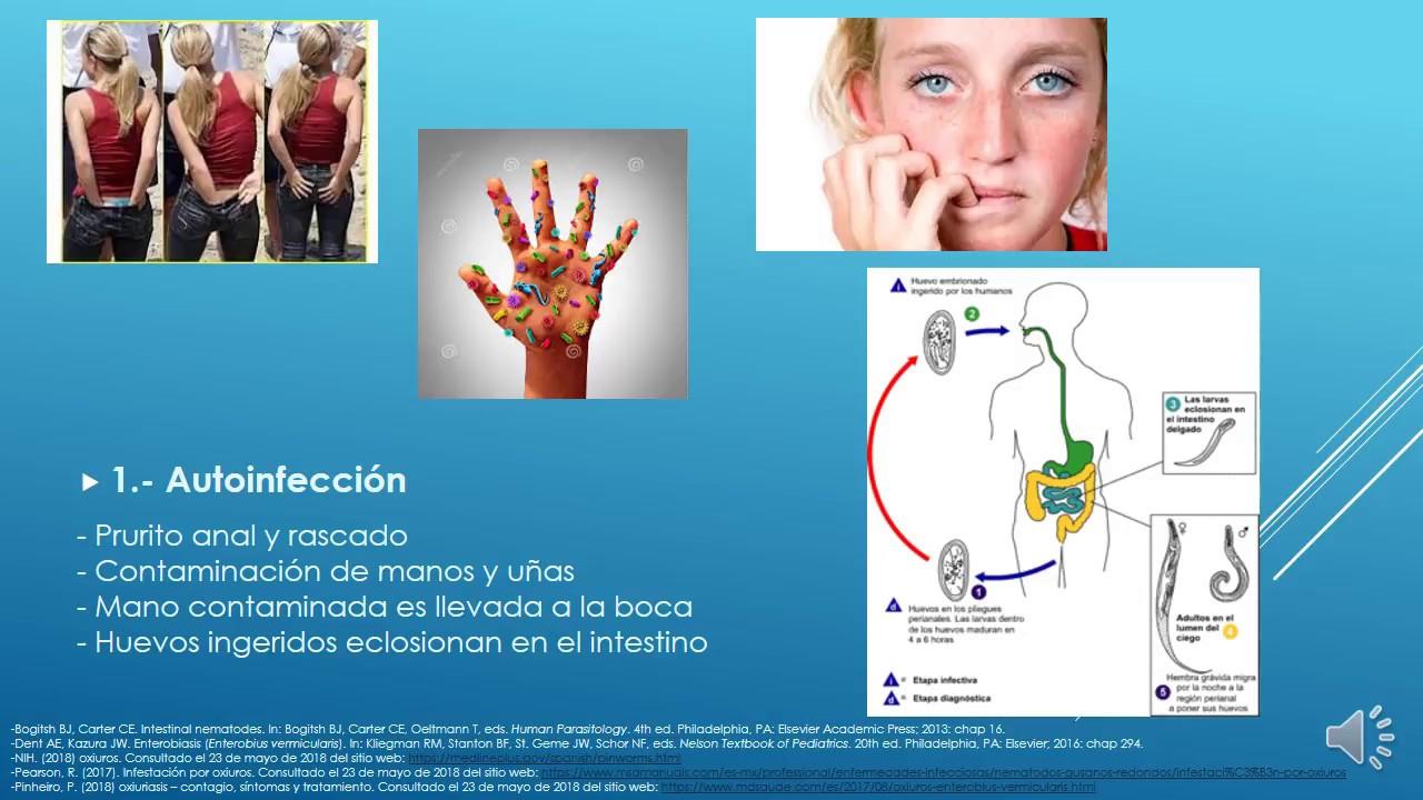 enterobius vermicularis belirtileri