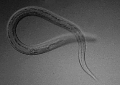 hookworm therapy allergies