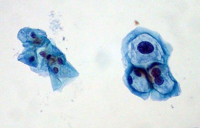 papilloma virus tip 16 papillomavirus beim mann