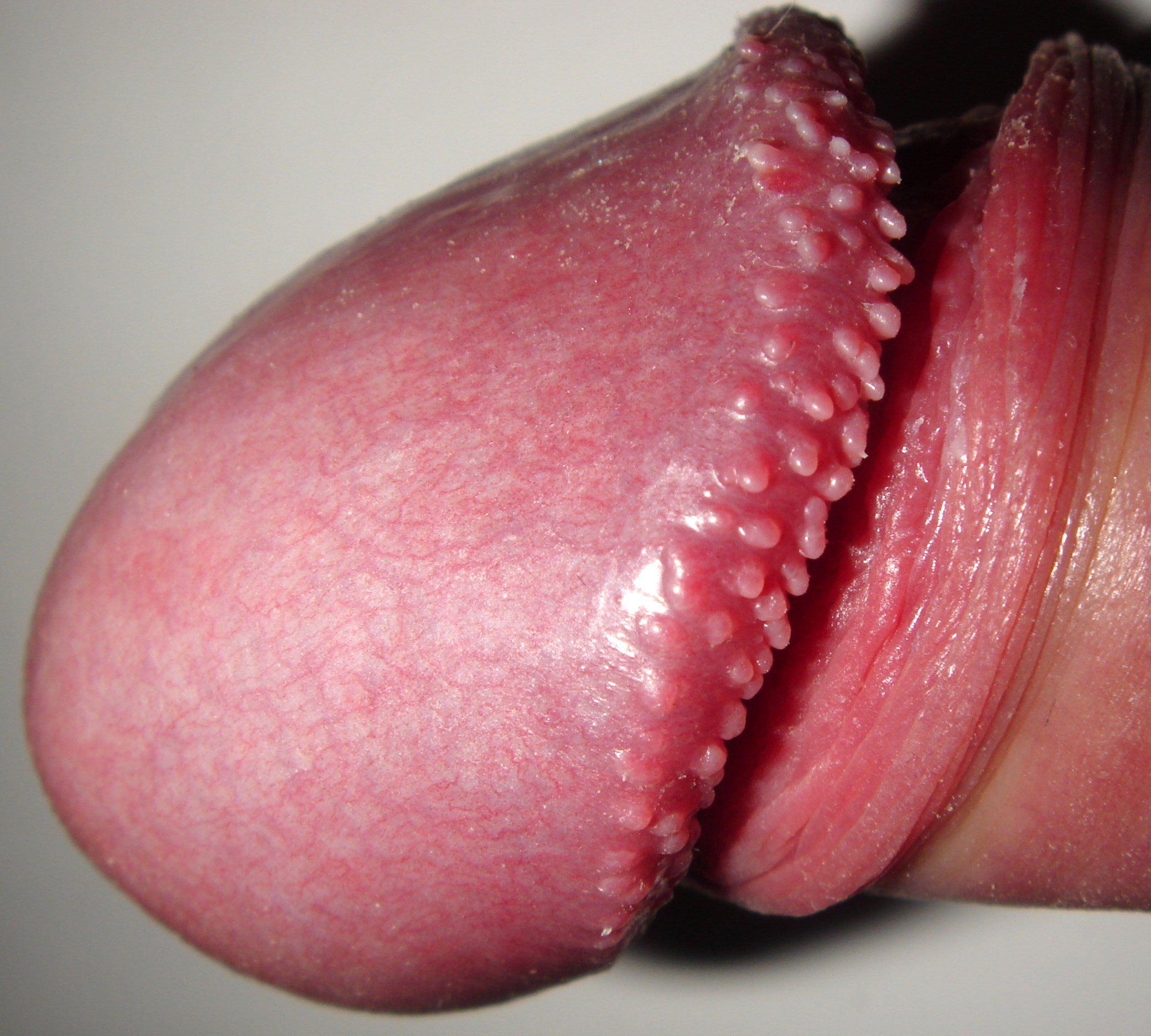 vestibular papillomatosis definition ciuperci de post