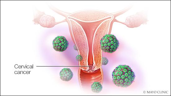 Condylome forcement papillomavirus