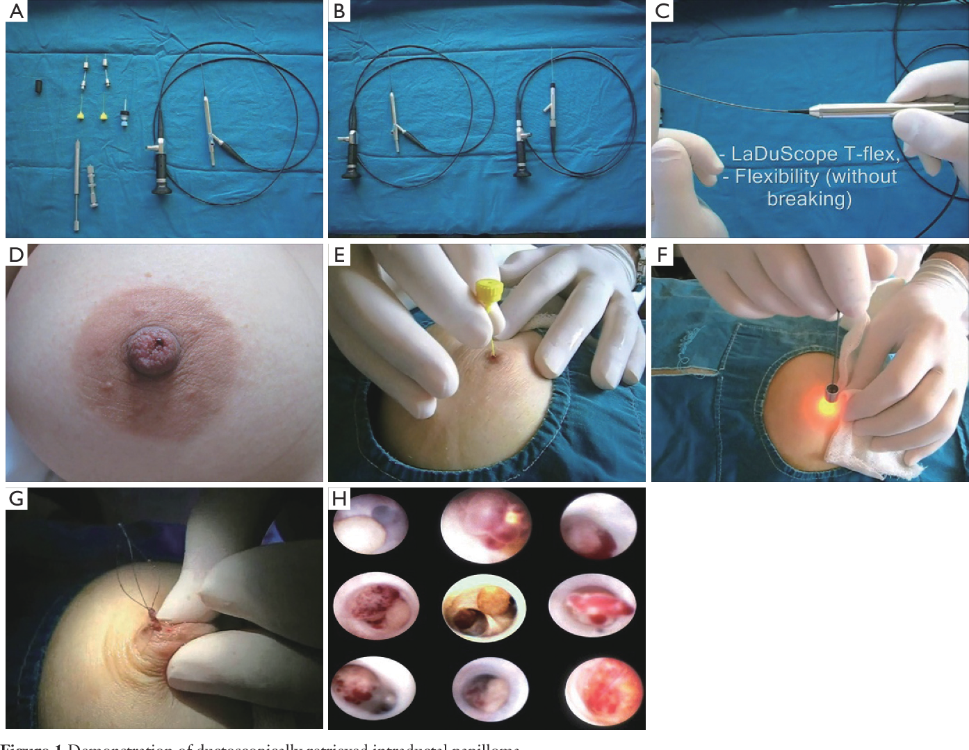 papilloma of the breast surgery hpv in throat cure