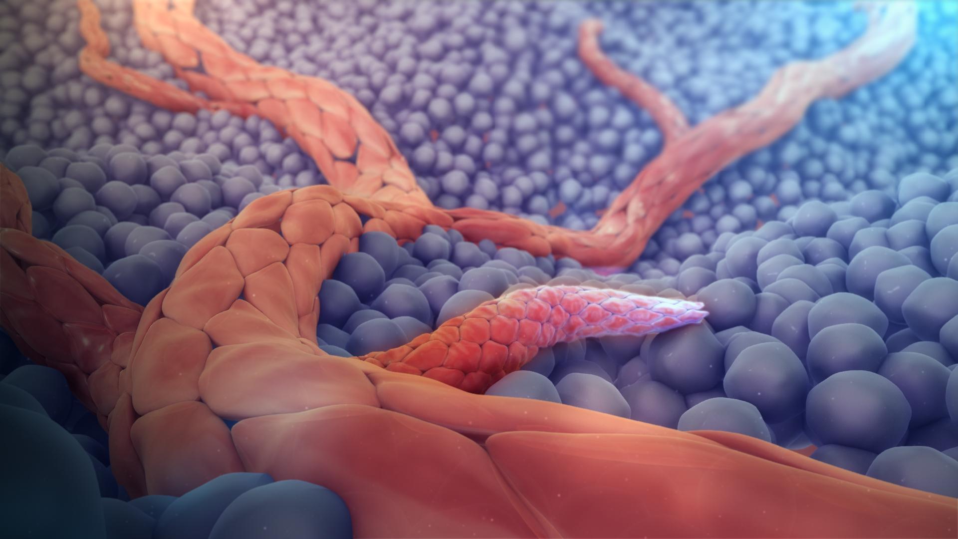 papiloma principales caracteristicas cancerul de tiroida