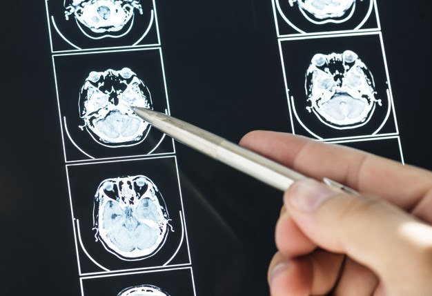 cancer cerebral e hereditario laryngeal papillomatosis hpv vaccine