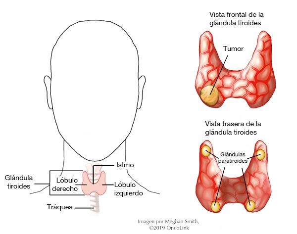 can papillary thyroid cancer cause jaw pain