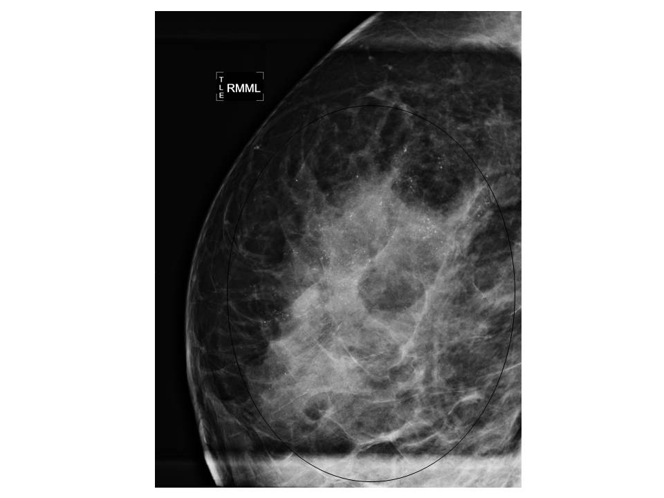 breast cancer genetic mutation cancer bucal se contagia