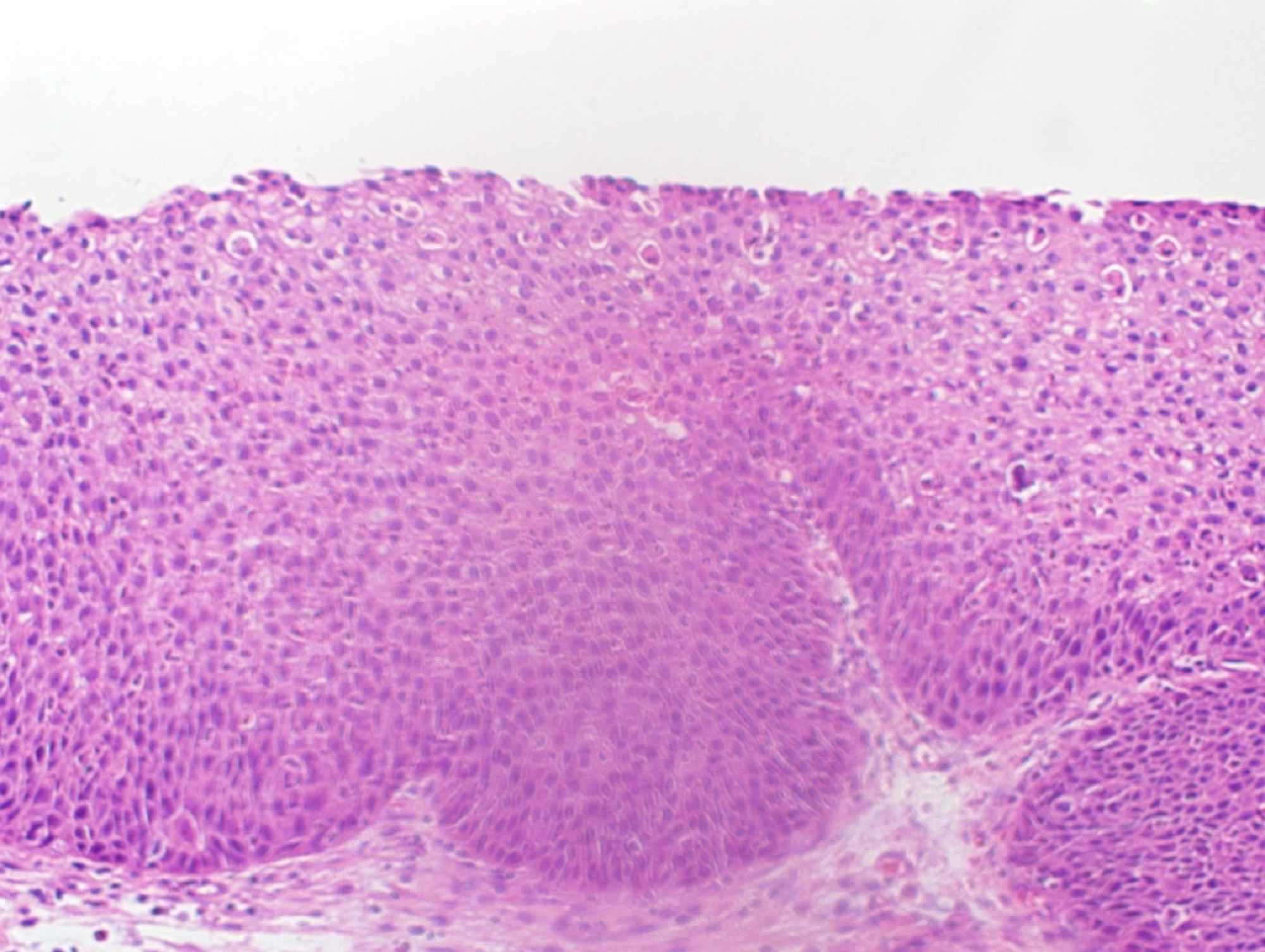papilloma inverted treatment