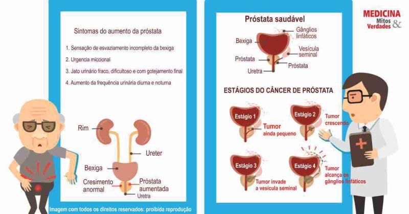 cancer de prostata mitos e verdades