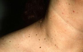 papiloma fibroepitelial cancer cervical man