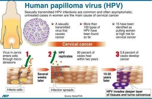 hpv and throat pain human papillomavirus 3