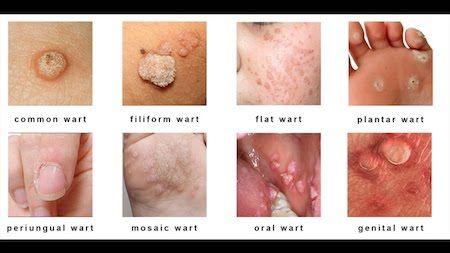 a wart caused by a virus human papillomavirus parotid gland