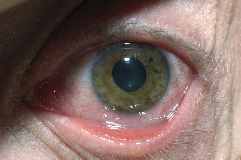 hpv behind eye