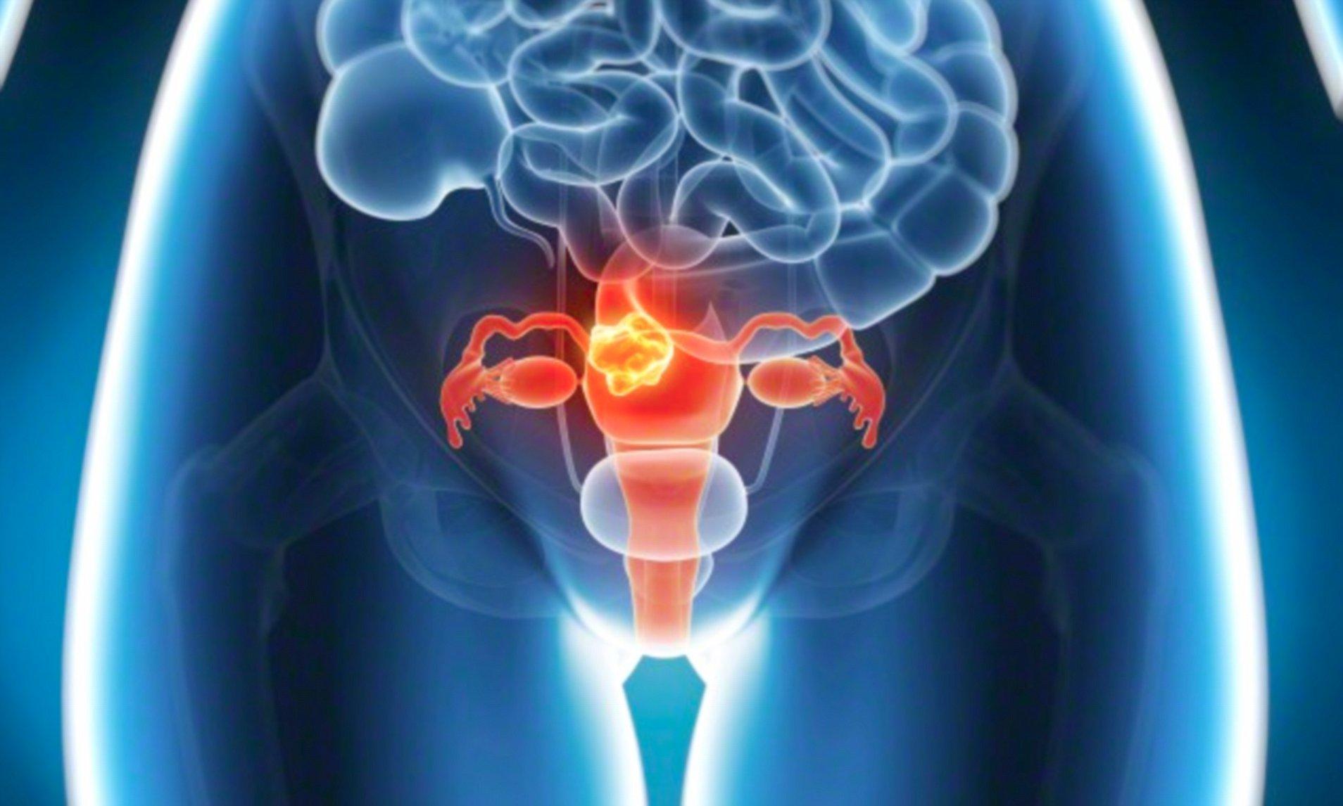 cancerul feminin