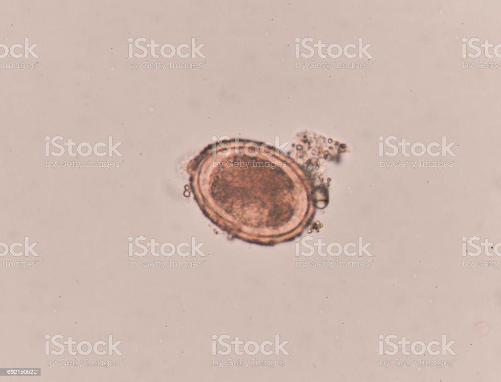 oxyuris vermicularis cdc ciuperci scumpe