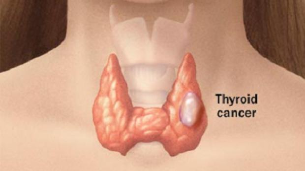 gliste u stolici djece hpv tumore esofago