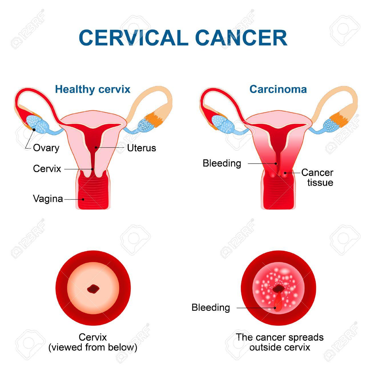 do breast papillomas need to be removed paraziti din corpul uman