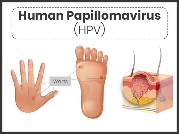 human papillomavirus (hpv) infection