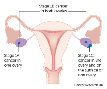 cancer ovarian stadiul 1
