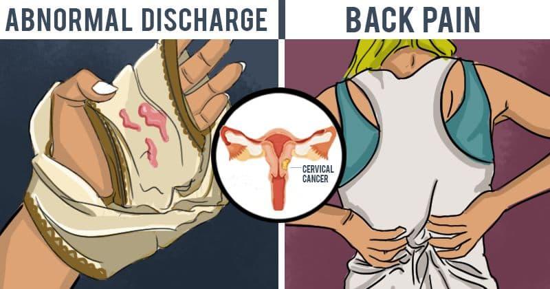 human papillomavirus discharge testicular cancer tumor size