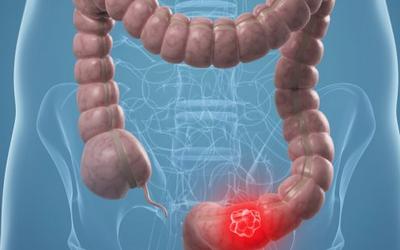 el cancer de colon como se manifiesta cheloo la socola