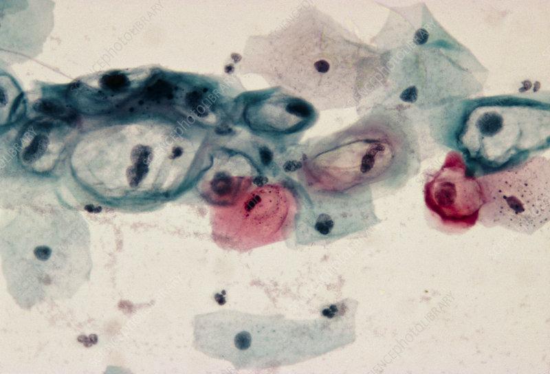 papilloma virus pap smear