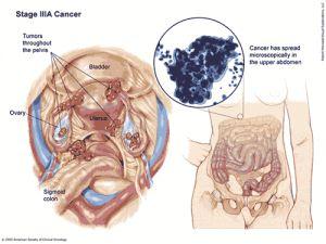 human papilloma kanker