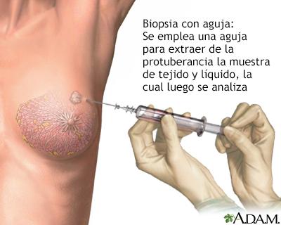 tratamiento papilomatosis intraductal cancer feminine hygiene products