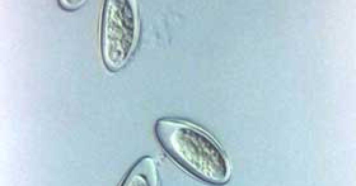 Paraziti intestinali - malaimare.ro