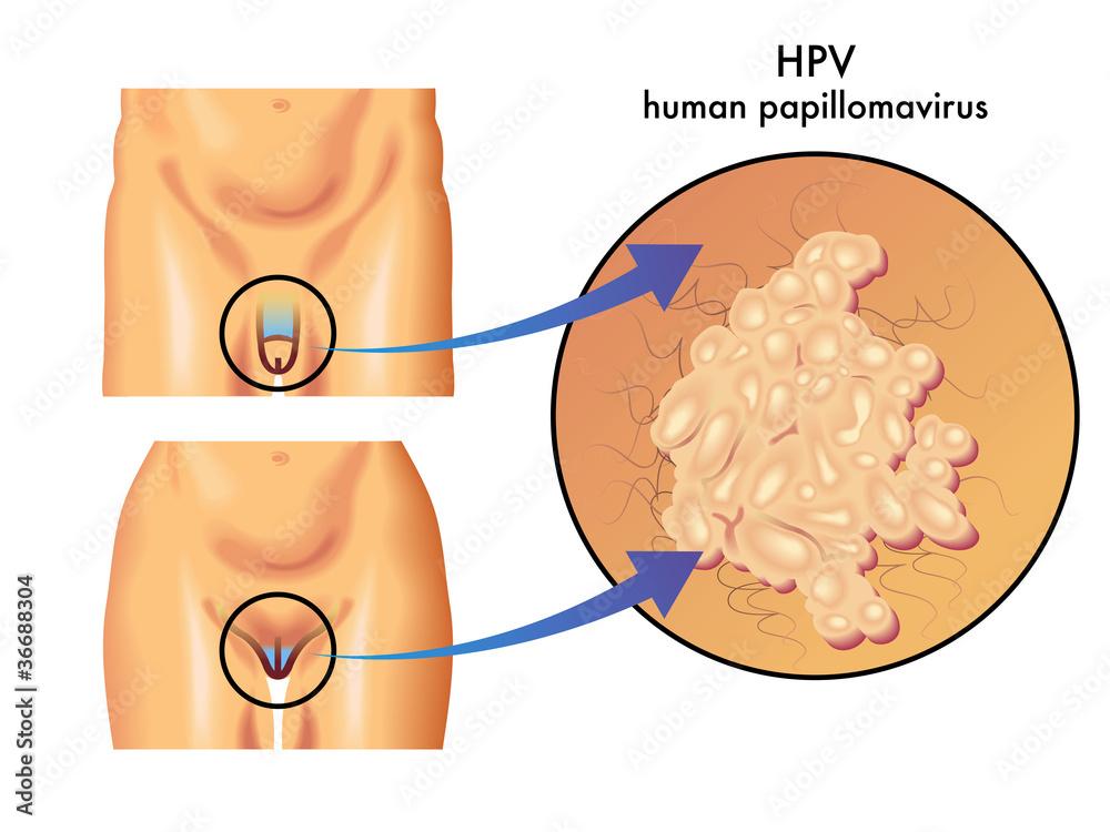 wart papilloma virus