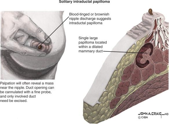 uterine cancer figo staging