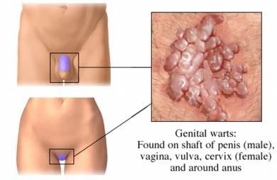 papillomavirus lingua sintomi