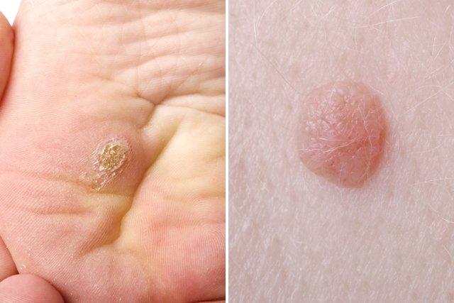 virus papiloma humano sintomas