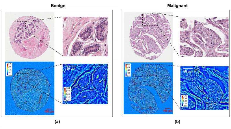 breast cancer benign and malignant