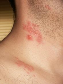 papillomavirus traduction en arabe
