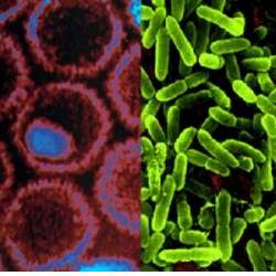 bacterii si virusuri cancer de pancreas metastasis en el higado