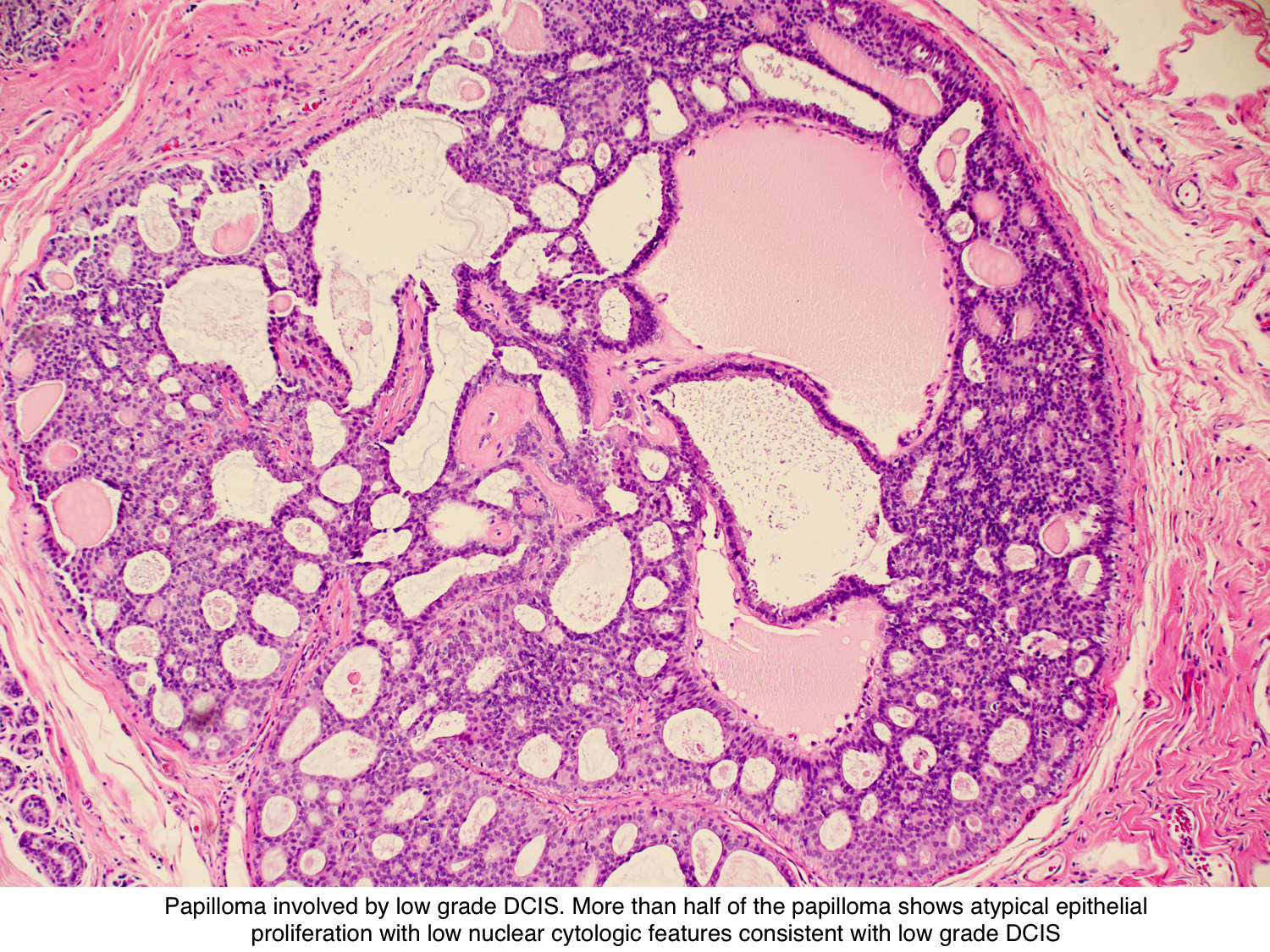 intraductal papilloma ductal carcinoma in situ